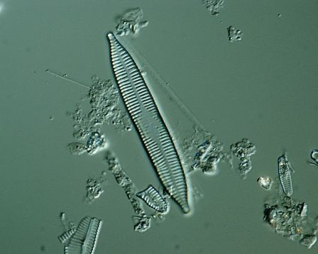 Diatoms: Wild Rides, Wildflowers